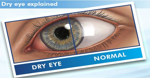 Causes and Treatments of Dry Eye Syndrome