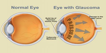 How to Prevent Glaucoma? - Assignment Point