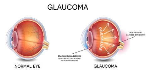 How to Prevent Glaucoma?
