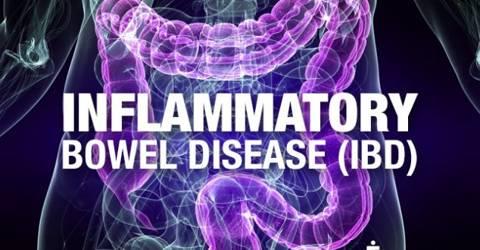 Inflammatory Bowel Disease: Symptoms and Treatments
