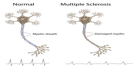Symptoms and Treatments of Multiple Sclerosis - Assignment Point