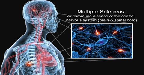 Symptoms and Treatments of Multiple Sclerosis