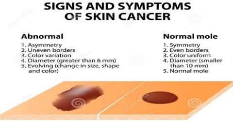 Symptoms and Treatments of Skin Cancer