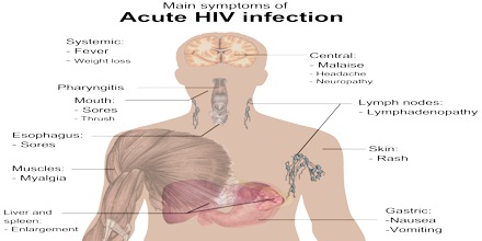 Socio Cultural Problems faced by People Living with HIV