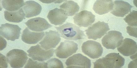 Plasmodium Ovale Assignment Point