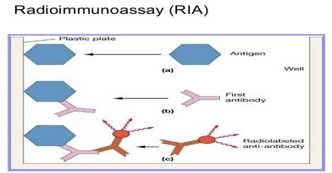 About Radioimmunoassay (RIA)
