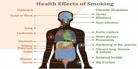 Health Effects and Prevention of Smoking - Assignment Point