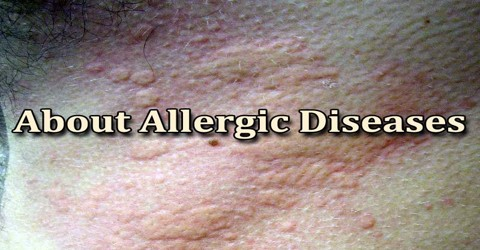 About Allergic Diseases