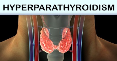 About Hyperparathyroidism