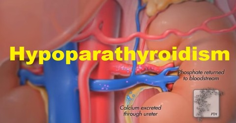 parathyroid hormone thesis About parathyroid hormone definition parathyroid hormone (pth) is a hormone of the parathyroid gland that regulates the metabolism of calcium and phosphoru.