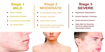 Acne Skin Diseases Assignment Point