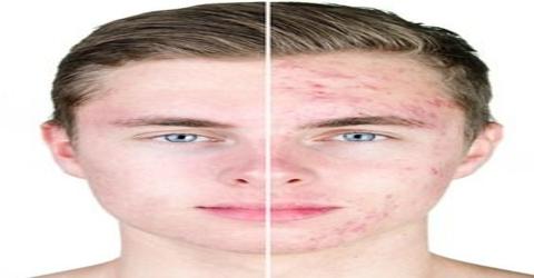 Acne: Skin Diseases