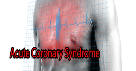 Acute Coronary Syndrome: Causes, Signs and Treatment