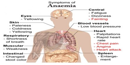 About Anaemia - Assignment Point