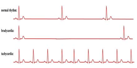 Atrial Fibrillation and High Blood Pressure Atrial Fibrillation and High Blood Pressure new picture