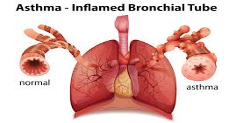 asthma is a chronic inflammatory disorder biology essay Hesi case studies: pediatrics - asthma we will write a custom essay sample on hesi case studies: based on knowledge of asthma as a chronic inflammatory disease, in this case complicated by allergic rhinitis, what is the best response of the rn.