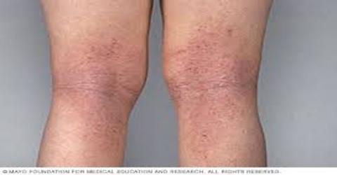 Atopic Dermatitis: Causes and Symptoms