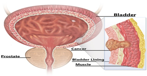 Bladder Cancer: Causes, Symptoms and Treatment