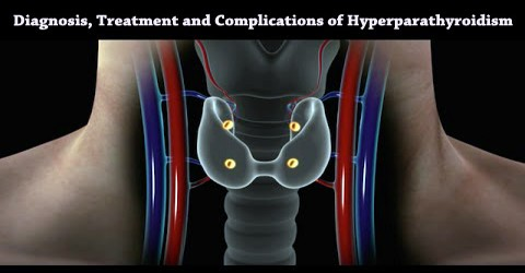 Diagnosis, Treatment and Complications of Hyperparathyroidism