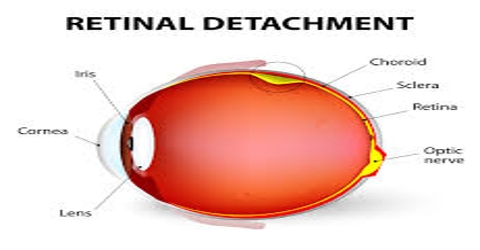 Retinal Detachment: Cause, Symptoms and Treatment