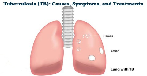 Tuberculosis (TB): Causes, Symptoms, and Treatments