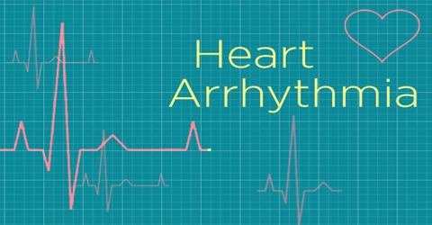 Arrhythmia: Causes, Symptoms and Treatment