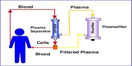 Plasmapheresis - Assignment Point