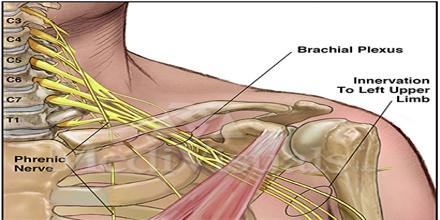About Brachial Plexus - Assignment Point