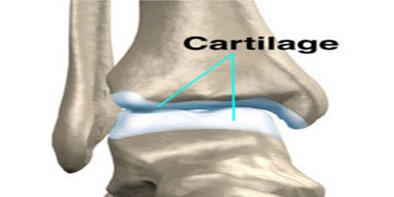 cartilage assignment point