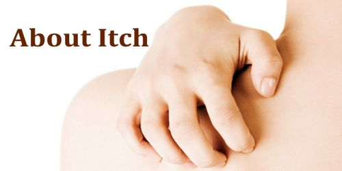 About Itch
