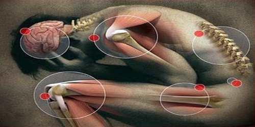 Paresthesia Causes
