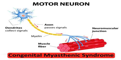 Congenital Myasthenic Syndrome