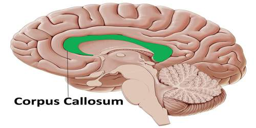 Corpus Callosum - Assignment Point