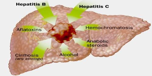 Hepatic cancer etiology, Molecular Genetics of Liver Neoplasia