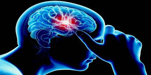 Migraine - Assignment Point