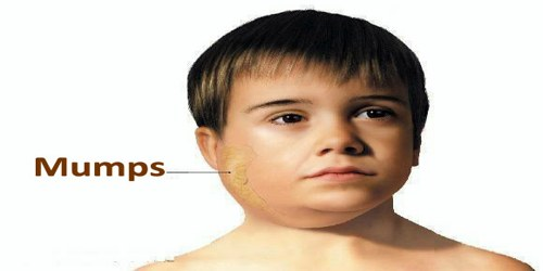 Mumps in adult males valuable piece