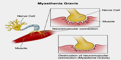 myasthenia gravis research paper Understanding myasthenia gravis jerry, diagnosed in 2002 what is myasthenia gravis myasthenia gravis (mg) is a neuromuscular disorder that causes muscle weakness it affects muscles that a  research and education to discover causes, improved treatments, and cures for brain and other nervous system diseases to learn more or to make a donation.