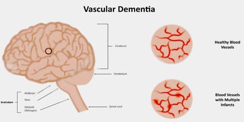 Vascular Dementia - Assignment Point