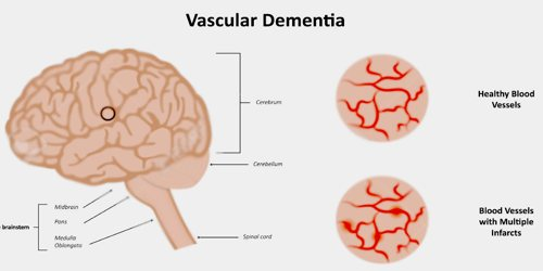 Image result for Multi-Infarct Dementia