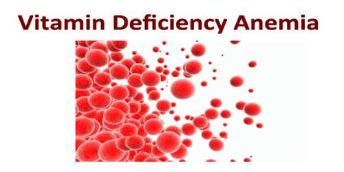 Vitamin Deficiency Anemia