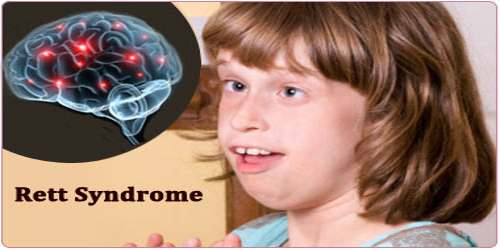 retts syndrome paper Rett syndrome is a severe neurodevelopmental disorder of unknown aetiology a prolonged qt interval has been described previously in patients with rett syndrome to investigate qt prolongation and.
