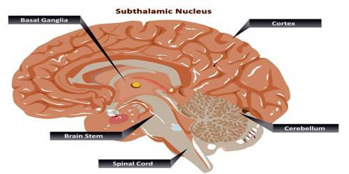 Subthalamic Nucleus