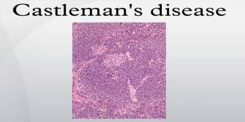 Castleman's Disease
