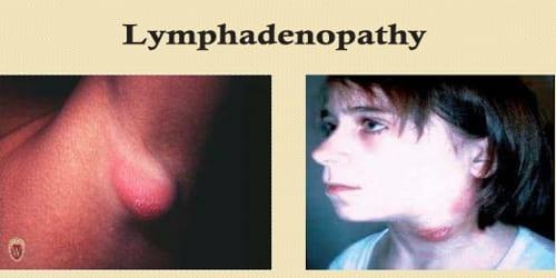 Lymphadenopathy