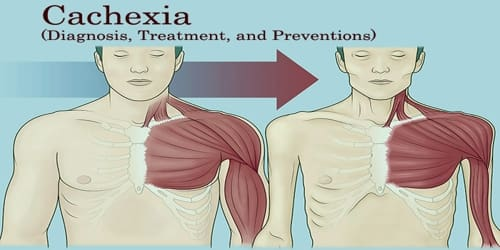 Cachexia (Diagnosis, Treatment, and Preventions)
