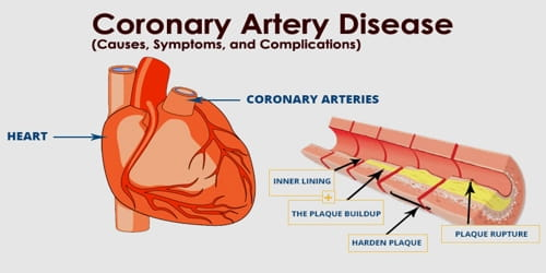 coronary artery disease  causes  symptoms  and