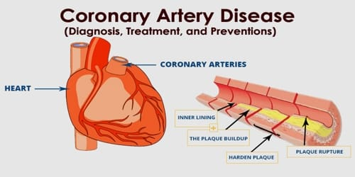 Coronary artery disease (Diagnosis, Treatment, and Preventions)