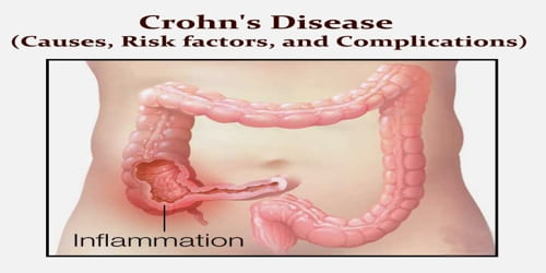 Crohn's Disease (Causes, Risk factors, and Complications)