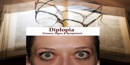 Diplopia (Causes, Signs, and Symptoms)