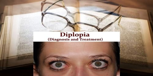 Diplopia (Diagnosis and Treatment)